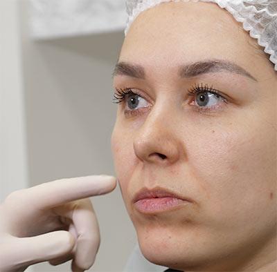 Крем для сухой кожи на лице